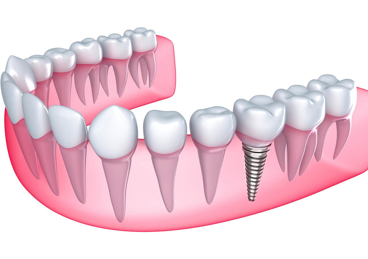 Implant Dentist in Keene NH Area